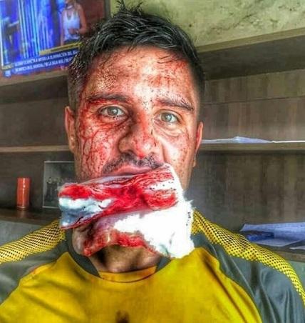 durante-treinamento-lateral-direito-do-penarol-sofre-corte-profundo-Futebol-Latino-12-04